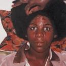 Stigmata; Adolescent Females Breed Poltergeist